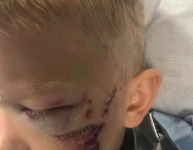 Chłopiec stanął w obronie młodszej siostry. Zaatakował ją pies