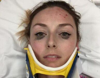 Zrobiła sobie selfie po wypadku samochodowym. Znajomi zwrócili uwagę na...