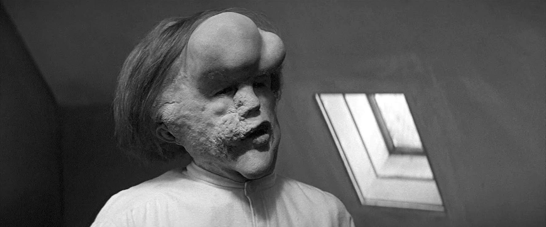 """W filmie """"Człowiek Słoń"""" (1980) tytułowego bohatera zagrał:"""