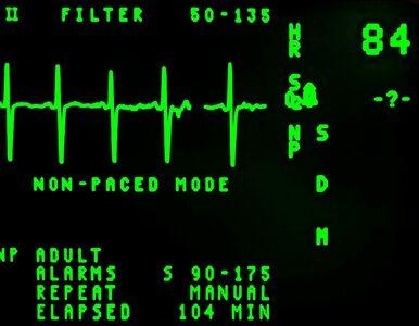 Czy sztuczna inteligencja będzie rozpoznawać arytmie w EKG lepiej niż...