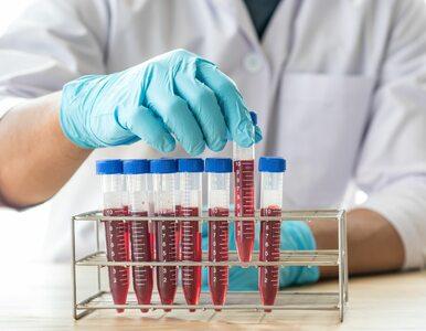 Polscy hematolodzy o leczeniu chorób krwi